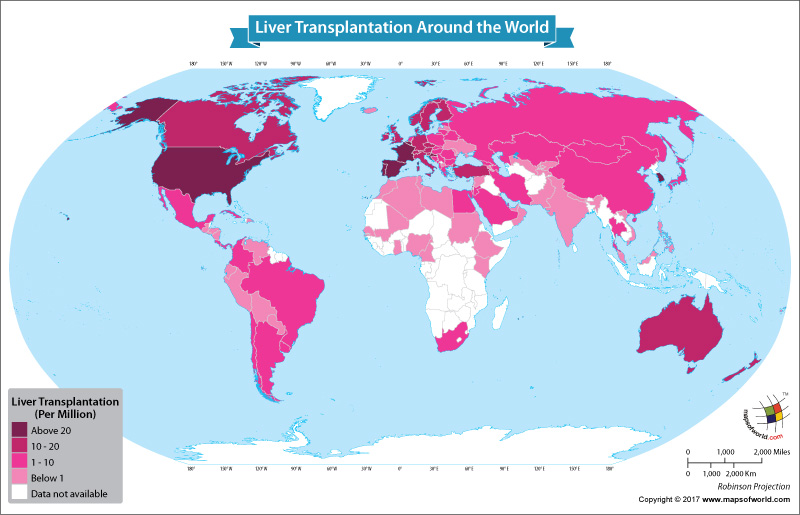 World map showing liver transplantations around the world